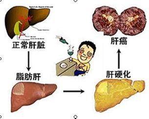 喝酒应酬容易患脂肪肝